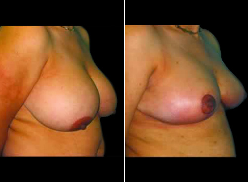 Liposuction & Breast Reduction Results