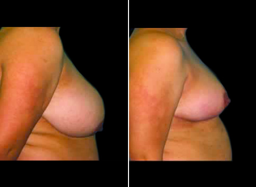 Liposuction And Breast Reduction Before And After