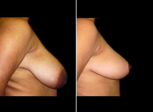 Before And After Liposuction & Breast Reduction