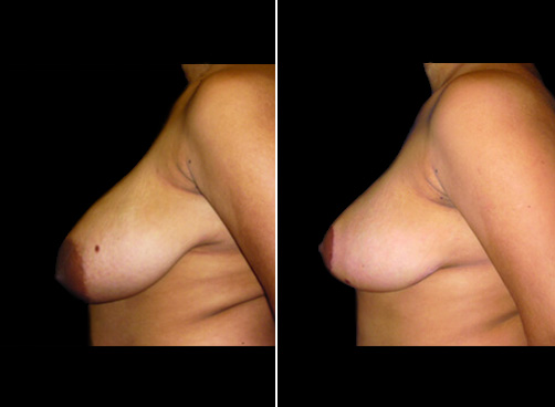 Before & After Liposuction & Breast Reduction