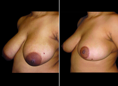 Before And After Liposuction And Breast Reduction