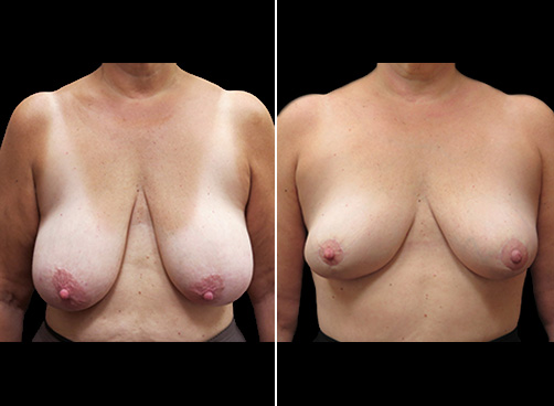 Before & After Liposuction And Breast Reduction