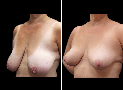 Lipo Surgery & Breast Reduction Results