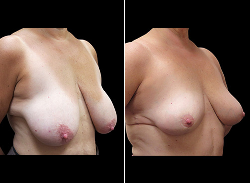 Lipo Surgery & Breast Reduction Before And After