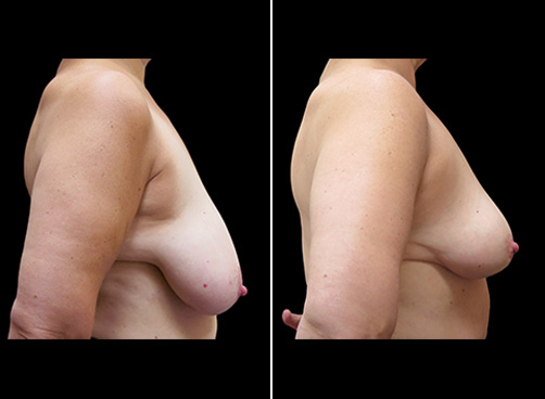 Lipo Surgery & Breast Reduction Before & After