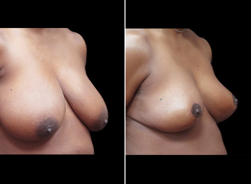 Lipo Surgery And Breast Reduction Results