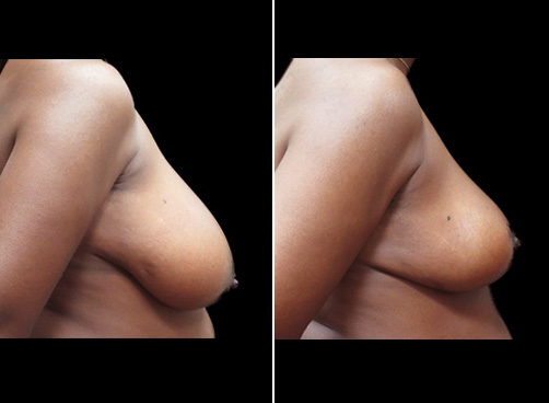 Lipo Surgery And Breast Reduction Before & After