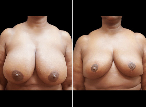 Lipo Surgery And Breast Reduction Before And After