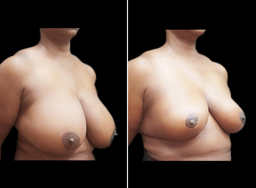 Before And After Lipo Surgery & Breast Reduction