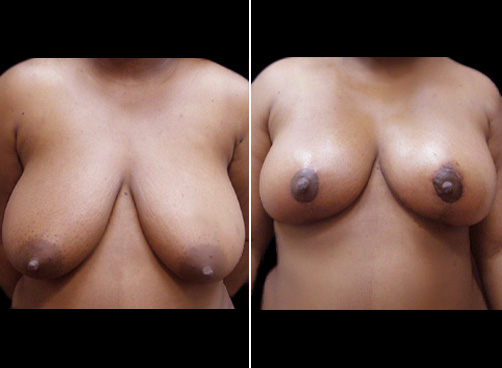 Before And After Lipo Surgery And Breast Reduction