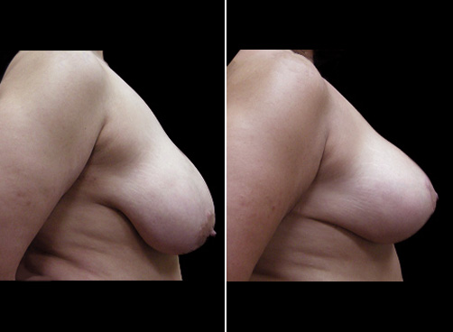 Liposuction Surgery And Breast Reduction Results