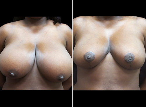 Liposuction Surgery & Breast Reduction Before And After