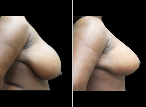 Liposuction Surgery & Breast Reduction Results