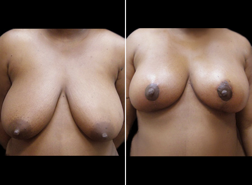 Liposuction Surgery And Breast Reduction Before & After