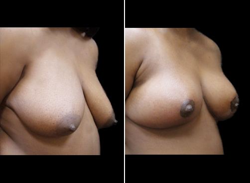 Liposuction Surgery And Breast Reduction Before And After