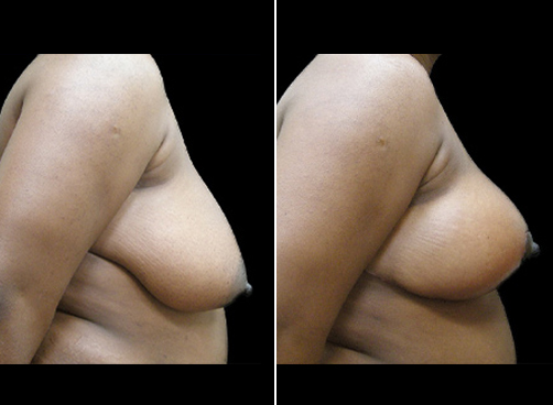 Before And After Liposuction Surgery & Breast Reduction