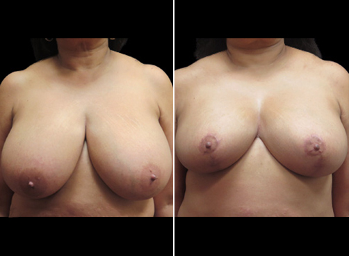 Before And After Liposuction Surgery And Breast Reduction