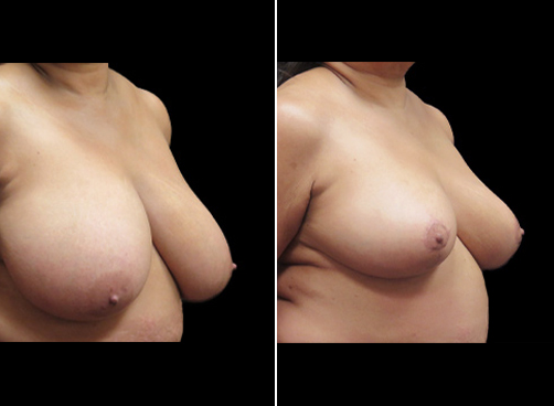 Before & After Liposuction Surgery & Breast Reduction