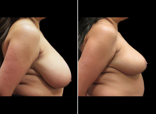 Before & After Liposuction Surgery And Breast Reduction