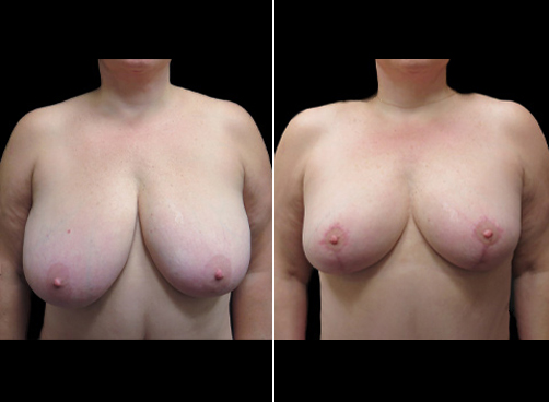 Lipo & Breast Reduction Surgery Before And After