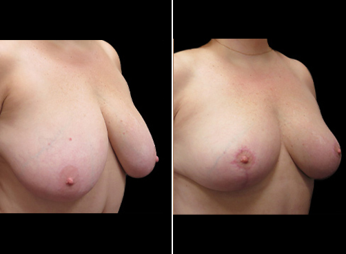 Lipo & Breast Reduction Surgery Before & After