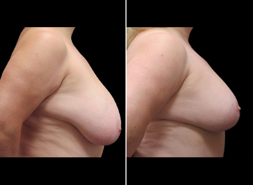 Lipo & Breast Reduction Surgery Results