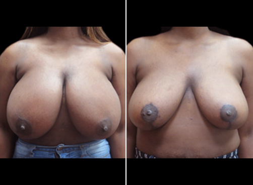 Lipo And Breast Reduction Surgery Before And After