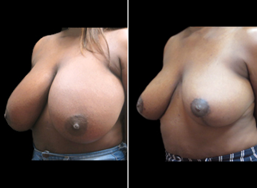 Lipo And Breast Reduction Surgery Before & After