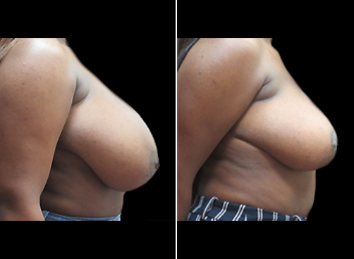 Lipo And Breast Reduction Surgery Results