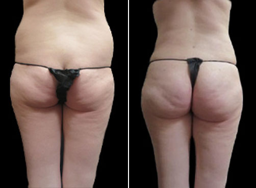 Liposuction & Mommy Makeover Surgery Before & After