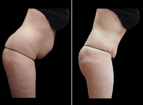Liposuction & Mommy Makeover Surgery Before And After