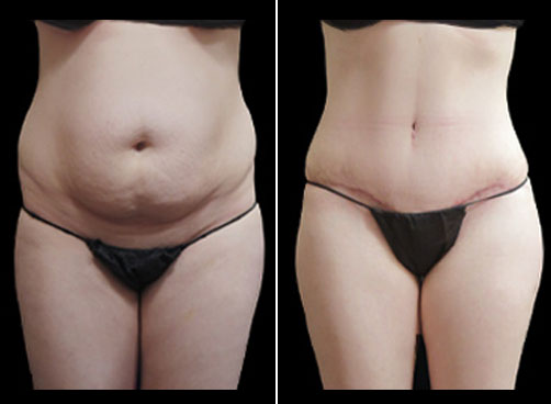 Liposuction And Mommy Makeover Surgery Before And After