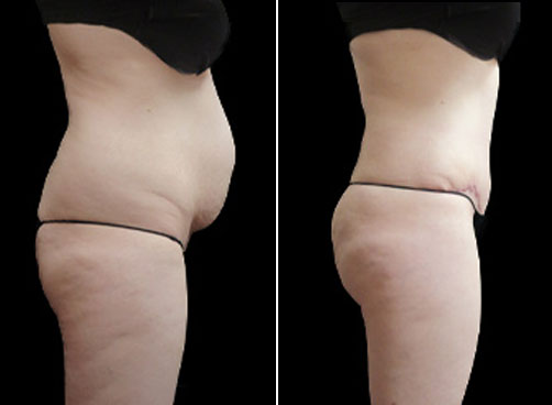 Liposuction And Mommy Makeover Surgery Before & After