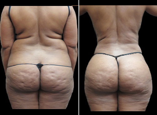 Before & After Liposuction And Mommy Makeover Surgery