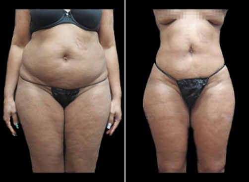 Before And After Liposuction And Mommy Makeover Surgery