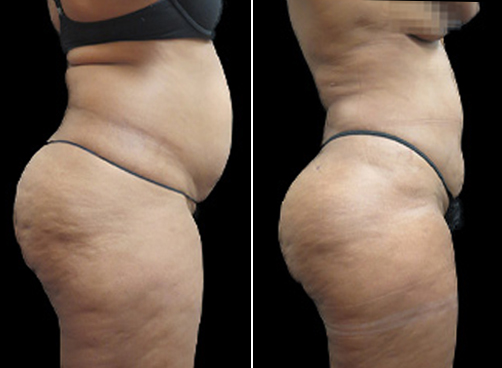 Before And After Liposuction & Mommy Makeover Surgery