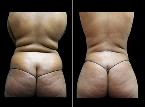 Before And After Lipo & Mommy Makeover Surgery