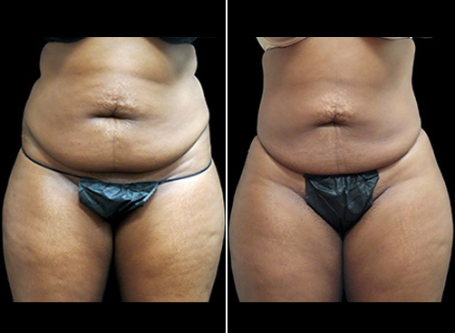 Lipo & Mommy Makeover Surgery Before & After