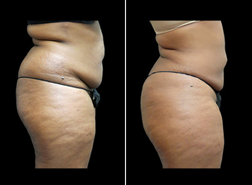 Before And After Lipo And Mommy Makeover Surgery