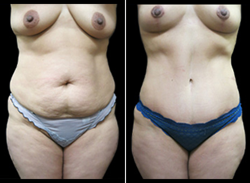 Before & After Lipo And Mommy Makeover Surgery