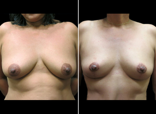 Liposuction Surgery And Mommy Makeover Before & After