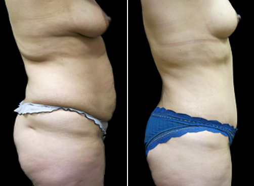 Before & After Lipo & Mommy Makeover Surgery
