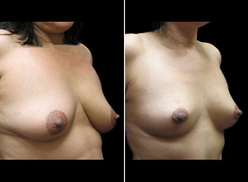 Liposuction Surgery & Mommy Makeover Before And After