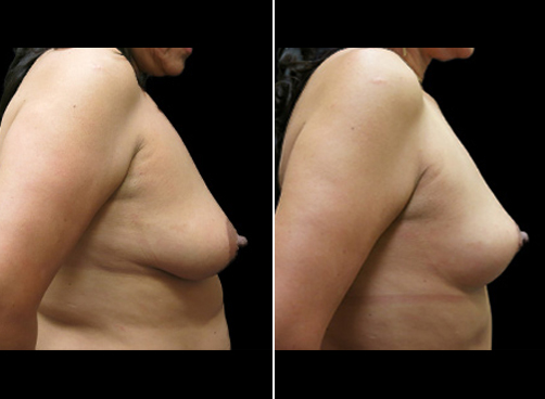 Liposuction Surgery & Mommy Makeover Before & After