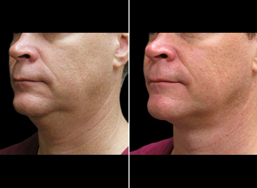 Laser Neck Lift Results In NYC