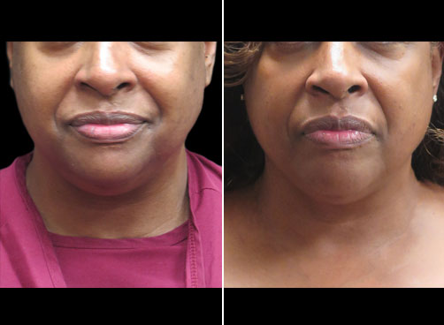 Laser Necklift Before And After
