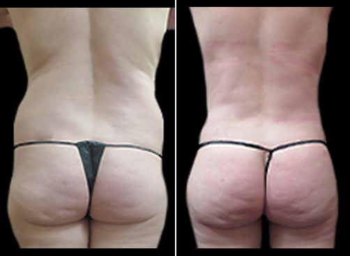 Before & After Liposuction Surgery & Mommy Makeover