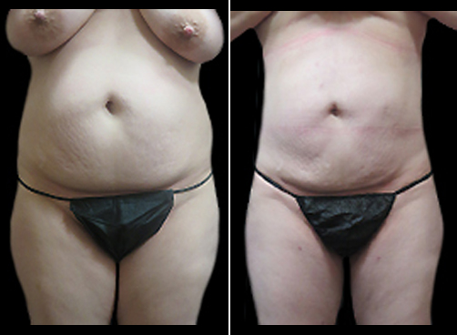 Before And After Liposuction Surgery And Mommy Makeover