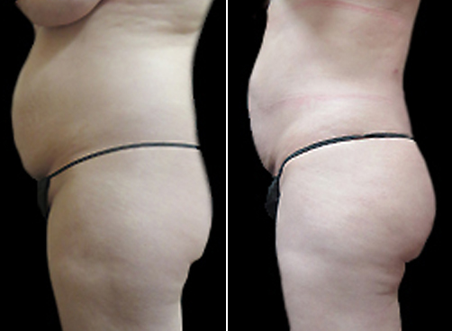 Before & After Liposuction Surgery And Mommy Makeover
