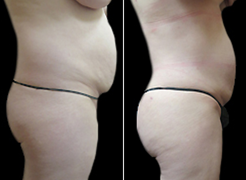 Before And After Liposuction Surgery & Mommy Makeover